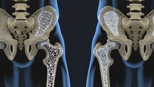 osteoporozė ir hipertenzija