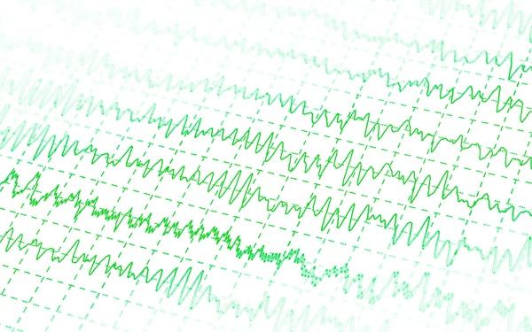 ar įmanoma nustatyti hipertenziją pagal ekg vaistai nuo hipertenzijos ir hipotenzijos