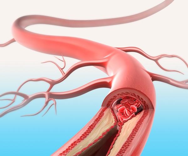 hipertenzija jauno amžiaus forume