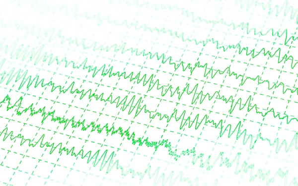 viskas apie pagrindinę hipertenzijos temą avokadas nuo hipertenzijos